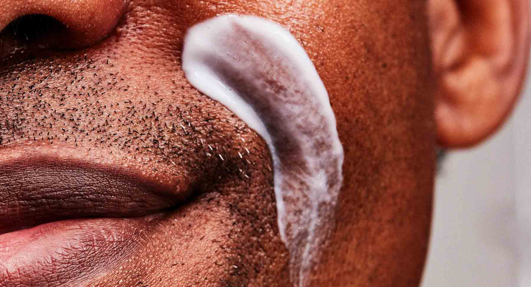 Acne Scars 101: Causes, Types, Treatments and Prevention Tips