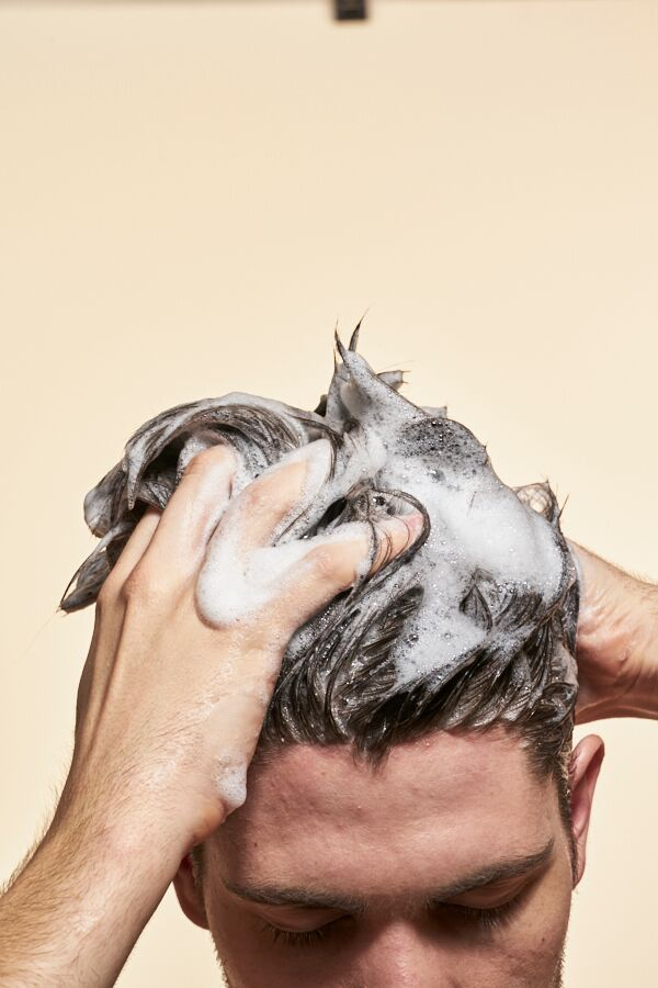 Does Dandruff Cause Hair Loss?