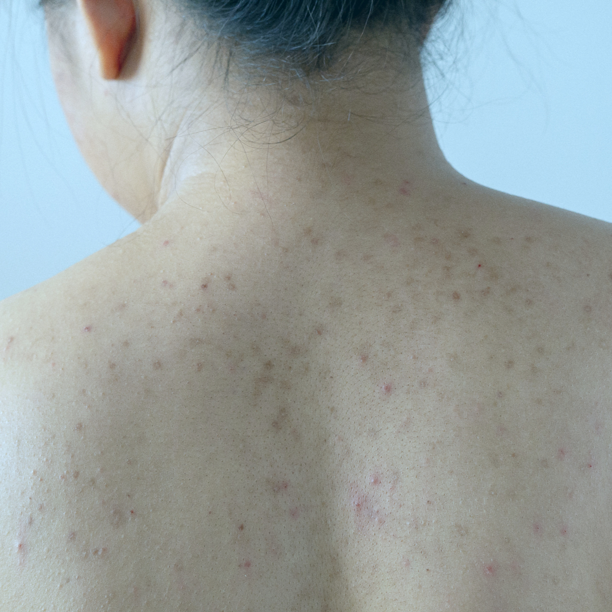 How To Spot Melasma and Other Types of Hyperpigmentation