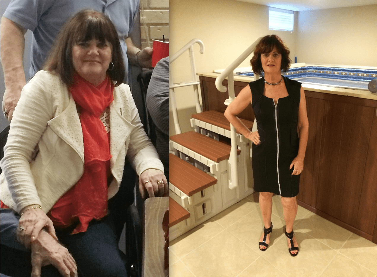 Deborah before and after she started using the Endless Pools WaterWell therapy pool