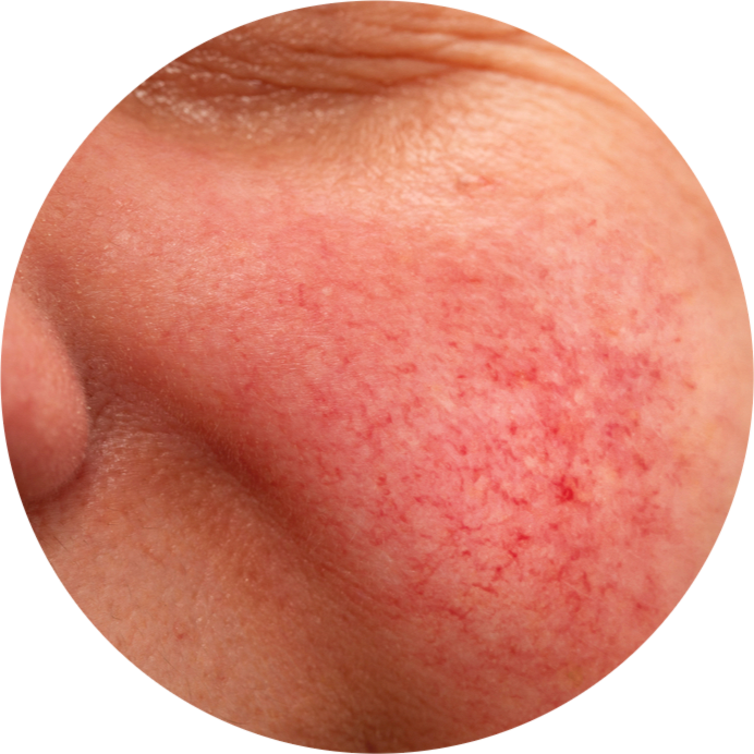 What Exactly Is Rosacea, and How Do You Get Rid of It?