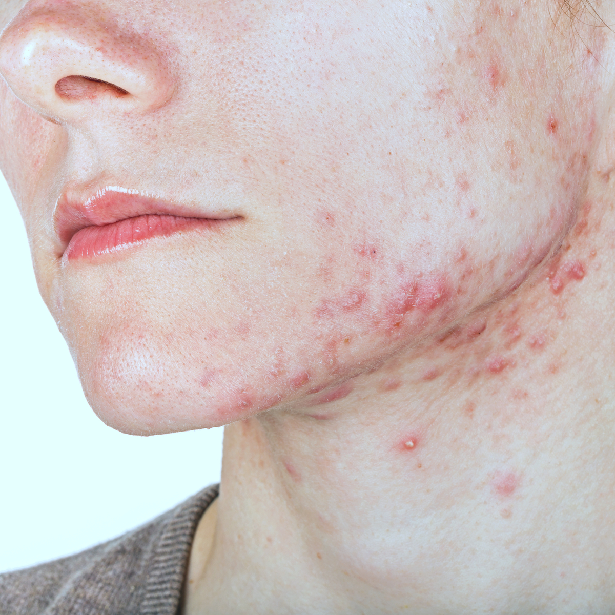 Understanding the Main Types of Acne: Symptoms and Treatments