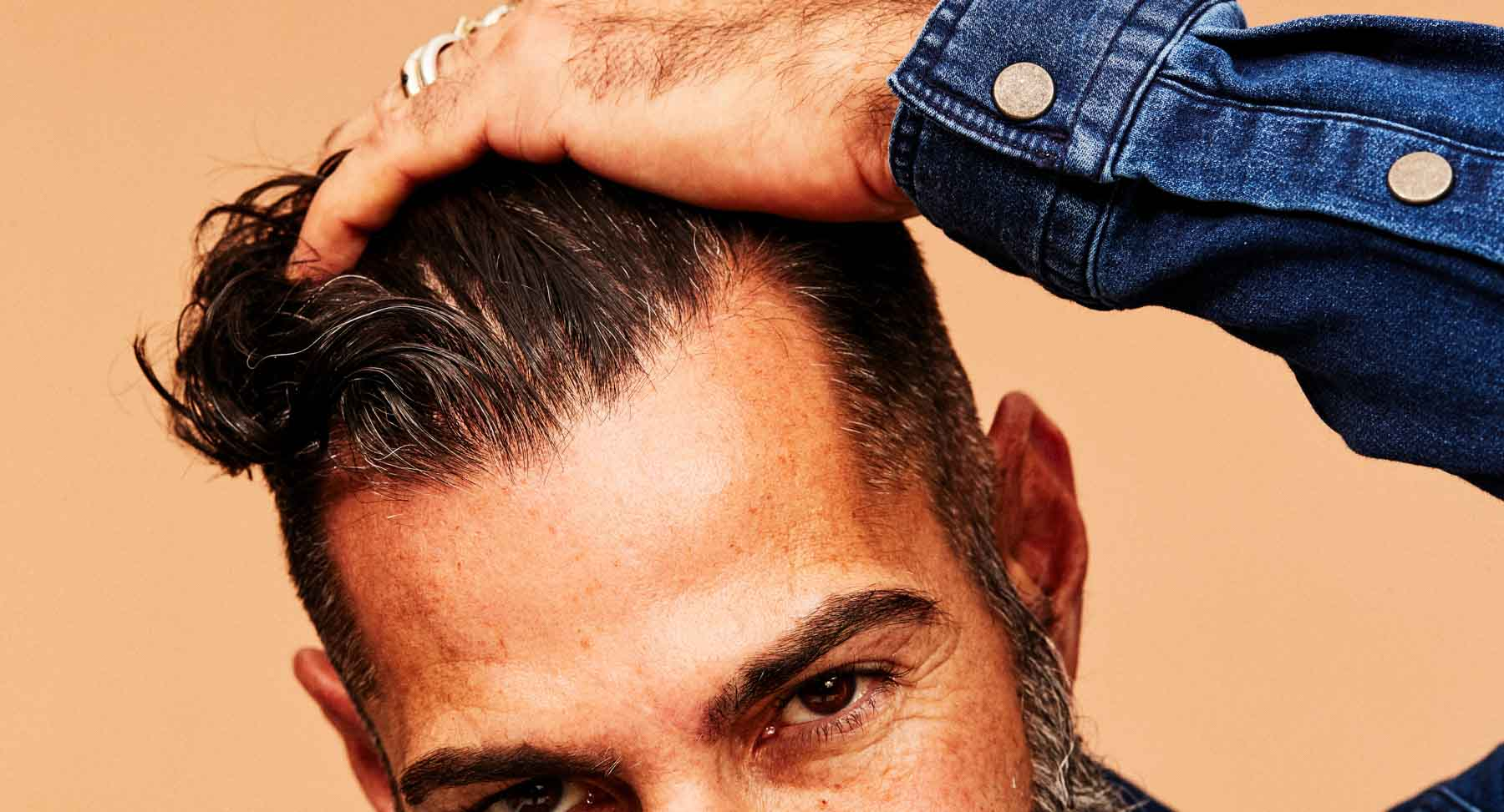 Vitamin D and Hair Loss: What You Need to Know