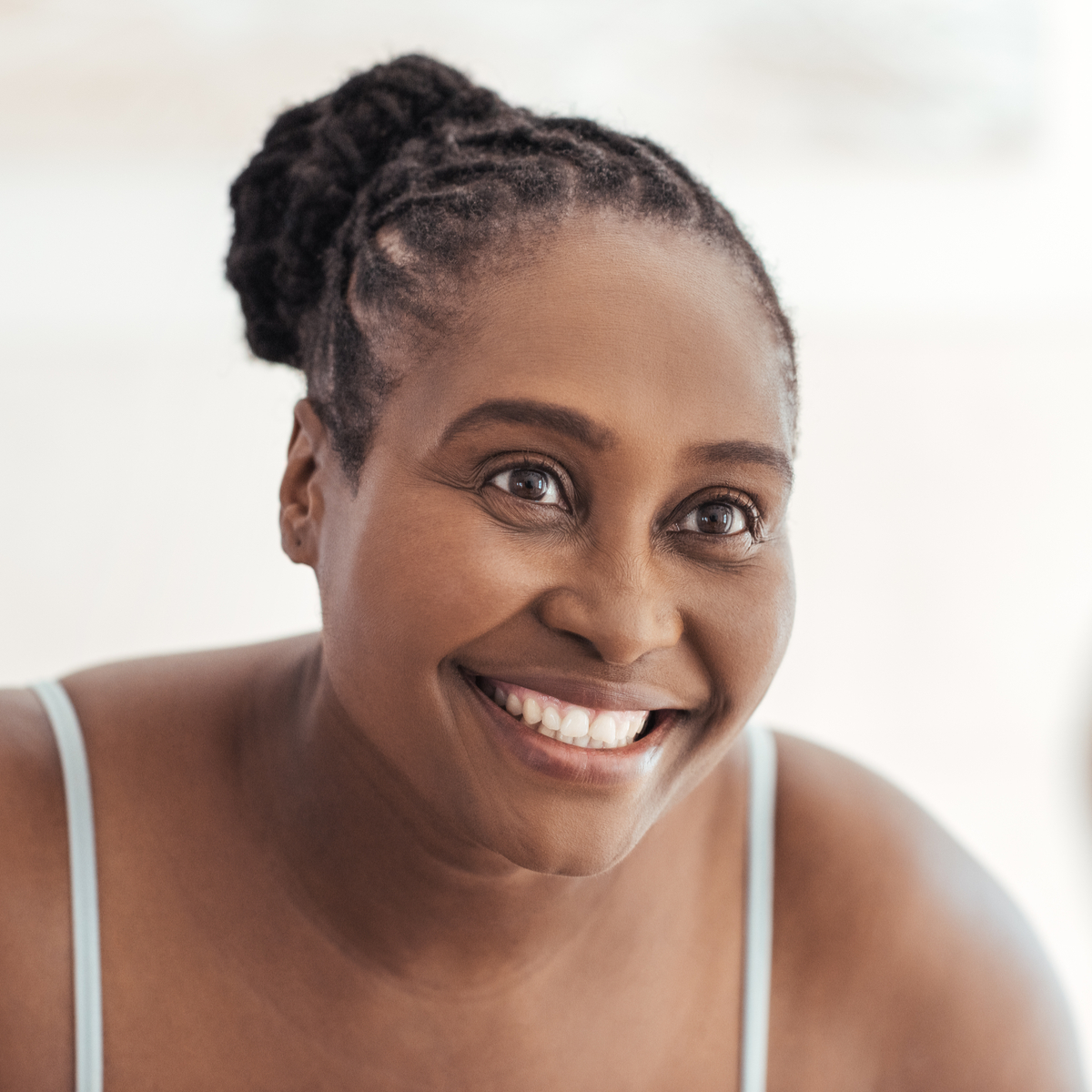 Hyperpigmentation and African American Skin