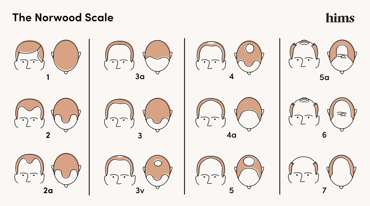 Norwood Scale Graphic