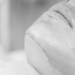 Will A Chemical Peel Remove My Dark Spots?