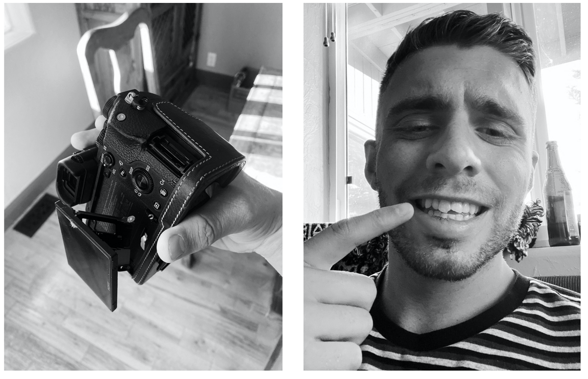 camera and man with broken tooth